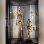 The skeleton of Charles